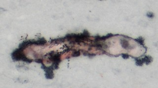 Alzheimer Beta-Amyloid