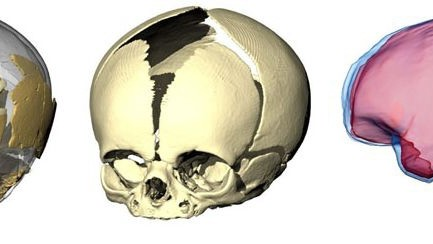 Neandertaler Gehirn
