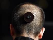 NYU photography professor Wafaa Bilal displays the digital camera attached to the mount implanted in the back of his head, in his apartment in New York