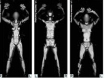 TSA undated handout image shows a composite of 4 separate scans from a whole body scan machine