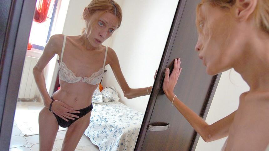 Französisches Mager-Model Isabelle Caro ist tot