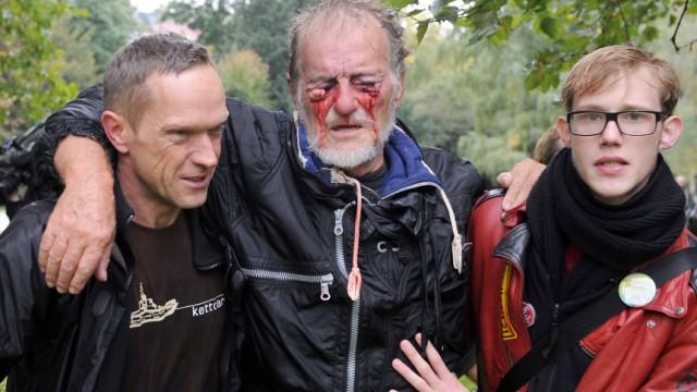 Verletzter Augen - Stuttgart 21 Proteste