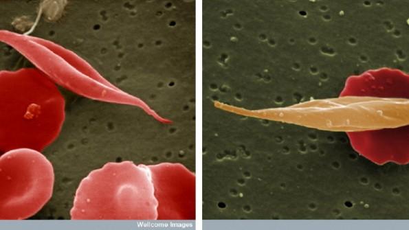 Sichelzellenanämie
