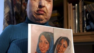 Iranian acid attack victim Ameneh Bahrami
