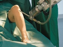 """Chirurgie-Roboter """"CASPAR"""""""