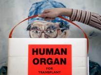 Deutschland fehlen die Organspender