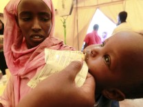 An internally displaced malnourished child receives food supplements at a mobile medical facility at the Hiran IDP settlement in Galkayo