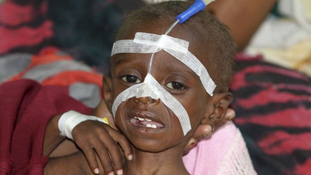A malnourished child is seen inside a pediatric ward at the Banadir hospital in Somalia's capital Mogadishu