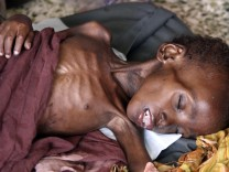 A malnourished child sleeps inside a ward at Banadir hospital in Somalia's capital Mogadishu