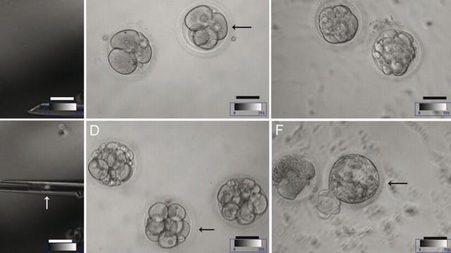 EU-Urteil zu Patenten für embryonale Stammzellen