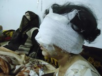 Wounded girl is seen in Baba Amro, a neighbourhood of Homs
