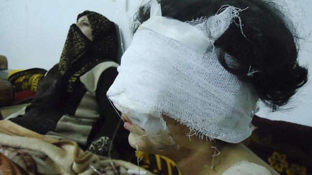 Wounded girl is seen in Baba Amro, a neighbourhood of Homs