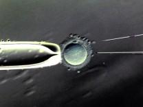 Künstliche Befruchtung