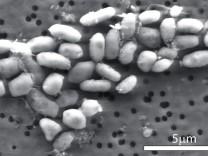 Forscher entdecken Bakterien auf Arsen