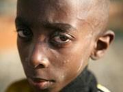 Aidskranker Junge, dpa