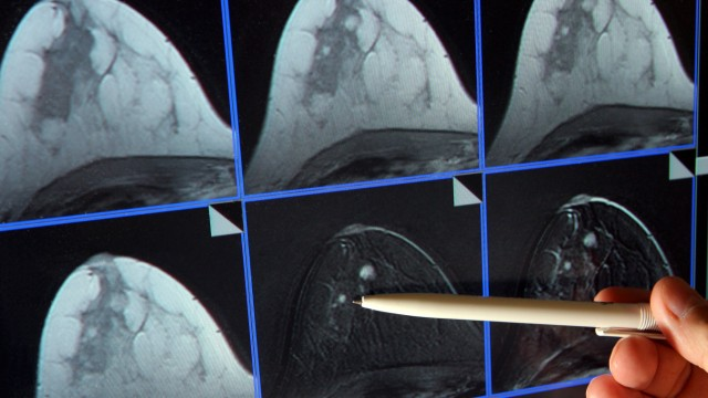 neues Anti-Krebs-Gesetz