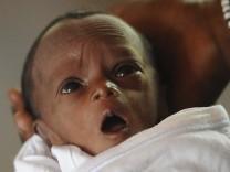 Unterernährtes Kind in einem Hospital in Kaya, Burkina Faso. Die Zahl der Todesfälle von Kindern unter fünf Jahren ist in den vergangenen 20 Jahren weltweit von mehr als zwölf auf 6,9 Millionen gesunk