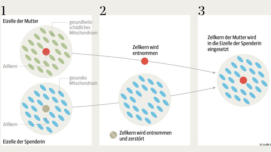 "Grafik ""Drei-Eltern-IVF"""