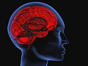 Gehirn, iStock