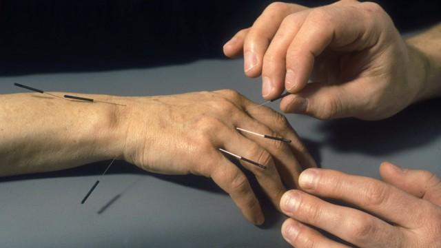 Akupunktur an der Hand