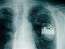 AOK-Report: Zu viele Operationen