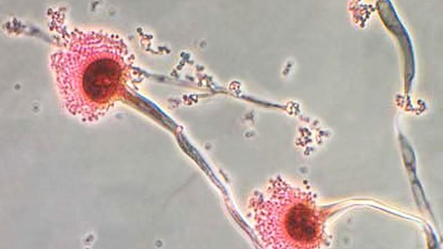 Aspergillus fumigatus: Pilzinfektionen werden unterschätzt