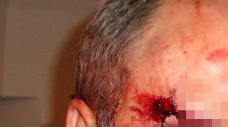 Möglicher Fall von Polizeigewalt in Wasserburg: der 53 Jahre alte Erwin Meier (Name geändert) Foto: oh