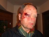 Möglicher Fall von Polizeigewalt in Wasserburg: der 53 Jahre alte Erwin Meier (Name geändert)Foto: oh