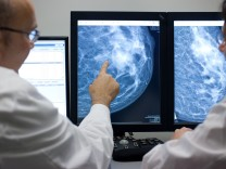 Mammographie: Hormonpräparate erhöhen das Bruskrebsrisiko