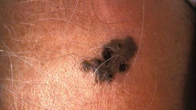 Schwarzer Hautkrebs Wie Sieht Hautkrebs Aus - AdzMana
