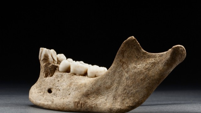 Several sharp cuts to the bottom of a mandible excavated at the Jamestown Rediscovery Project are pictured in this December 2012 handout photo provided by the Smithsonian Institute