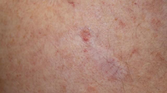 Ein Basaliom, auch Basalzellkarzinom oder weißer Hautkrebs genannt.