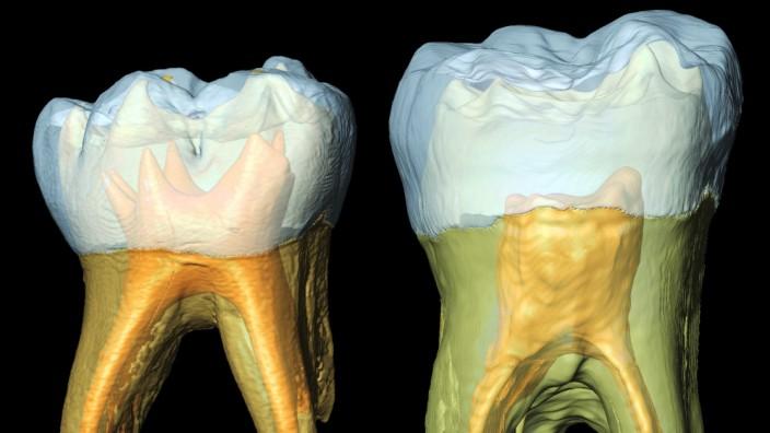 Die Zähne des Neandertalers geben Auskunft über seine Kindheit