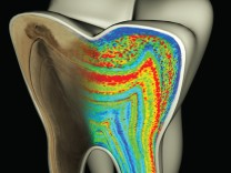 Wachstumsringe eines Zahns