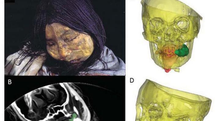 Neue Details über Menschenopfer der Inka