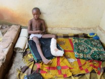 Zentralafrikanische Republik - Verletzter Junge
