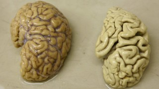 Half a healthy brain is pictured next to half a brain of a person suffering from Alzheimer disease Belle Idee University Hospital in Chene-Bourg