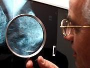Mammografie, Foto: ddp