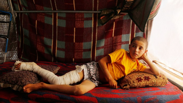 A Syrian refugee boy, who was injured in a recent bombing beside Bab Al-Salam refugee camp, poses as he rests in his tent in Azaz, near the Syrian-Turkish border