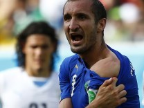 Italy's Giorgio Chiellini shows his shoulder, claiming he was bitten by Uruguay's Luis Suarez, during their 2014 World Cup Group D soccer match at the Dunas arena in Natal