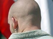 skinhead; ap
