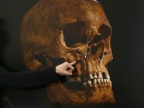 File photo of project osteologist Appleby pointing out the damage to a skull believed to be that of Richard III during a news conference in Leicester