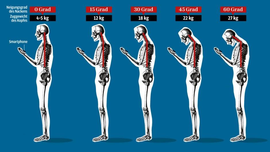 Panorama Haltungsschäden durch Technik