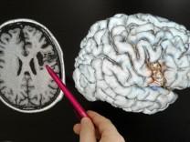 Gehirnforschung