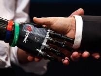 Nigel Ackland verwendet eine künstliche Hand