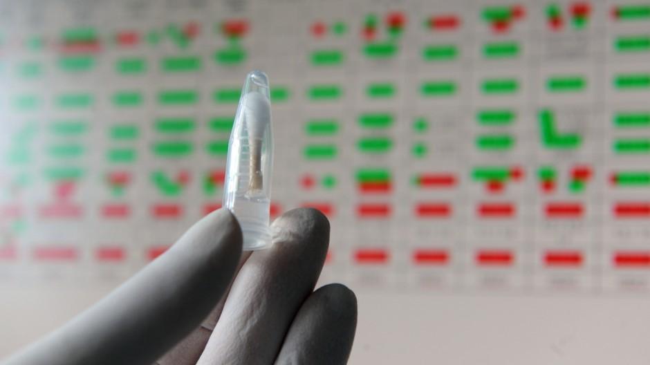DNS Untersuchung in der Rechtsmedizin der Münchner Universität, 2011