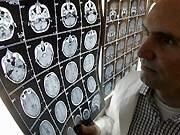 Krebsdiagnose, Symbolbild, ddp