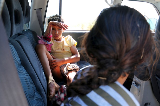 A boy, wounded by what activists said was violence caused by Islamic State fighters in Kobani, waits inside to cross into Turkey at Tel Abyad