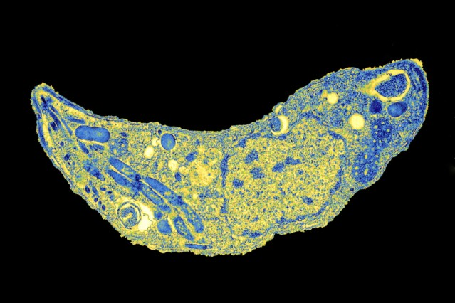 Toxoplasma parasite, TEM