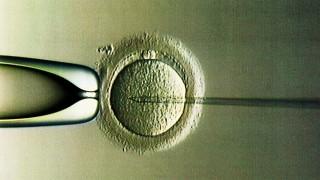 Künstliche Befruchtung - Kritik an Präimplantationsdiagnostik